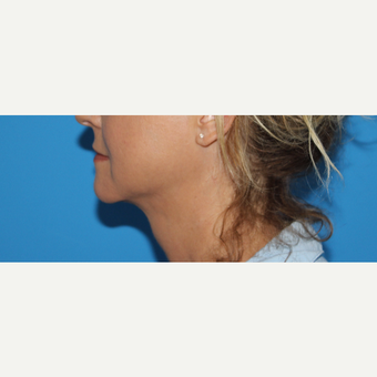 45-54 year old woman treated with Chin Liposuction after 3201612