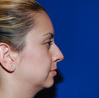 Chin Augmentation before 944861