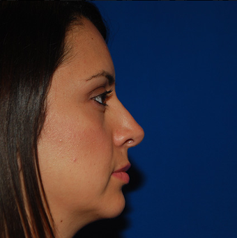 Chin Augmentation after 944861