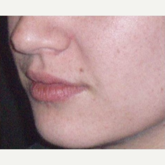 25-34 year old woman treated with Juvederm after 3153698