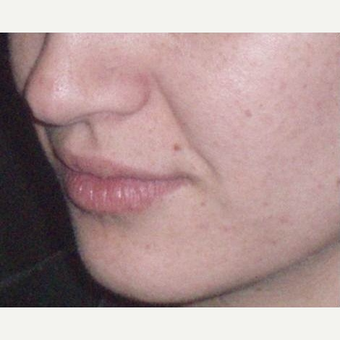 25-34 year old woman treated with Juvederm before 3153698