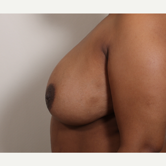 25-34 year old woman treated with Breast Reduction before 3280189