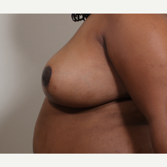 25-34 year old woman treated with Breast Reduction after 3280189