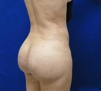 30 y.o. female – Liposuction of abdomen, flanks, & back with fat transfer to buttocks– 1150 cc per side 1436257