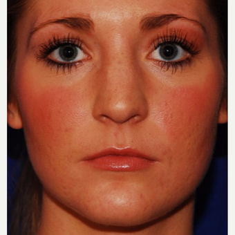 25-34 year old woman treated with Jaw Reduction after 3624514