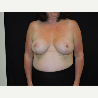 35-44 year old woman treated with Breast Reduction after 3331517