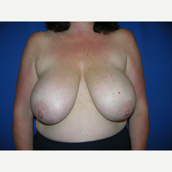 35-44 year old woman treated with Breast Reduction before 3331517