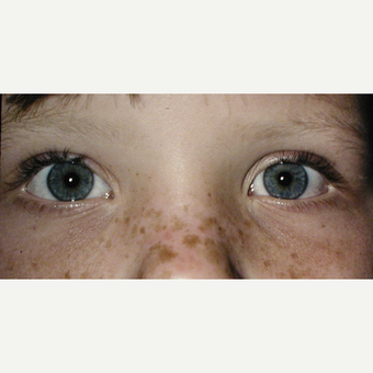 8 year old child before & after Synkinetic Ptosis Surgery