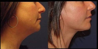 Neck lift, lower face lift