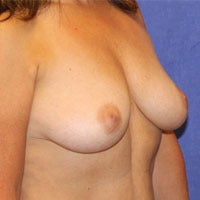 Breast Lift with Implants 1191440
