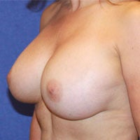 Breast Lift with Implants after 1191440