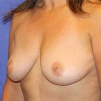 Breast Lift with Implants before 1191440