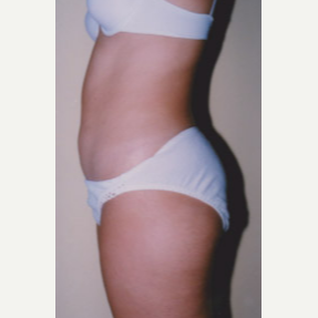 25-34 year old woman treated with Liposuction before 3374892