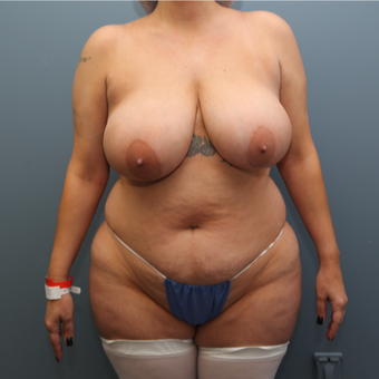 35-44 year old woman treated with Mommy Makeover before 3470242