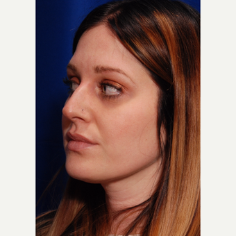 25-34 year old woman treated with Rhinoplasty before 3500309