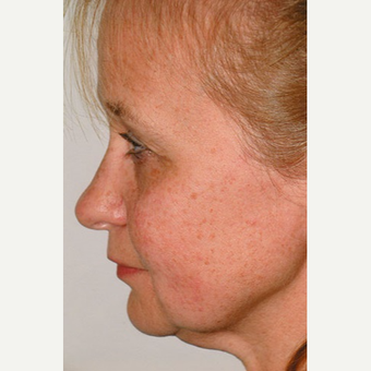 45-54 year old woman treated with Rhinoplasty before 3406264