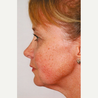 45-54 year old woman treated with Rhinoplasty after 3406264