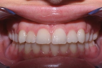 15 Year Old Female Orthodontics Without Extractions after 995079
