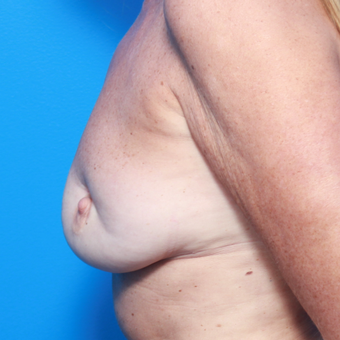 55-64 year old woman treated with Breast Fat Transfer before 2858252