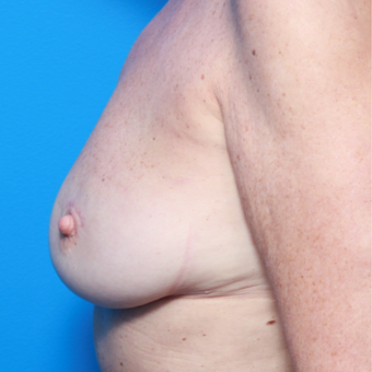 55-64 year old woman treated with Breast Fat Transfer after 2858252