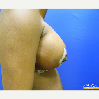 25-34 year old woman treated with Breast Augmentation after 3577488