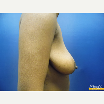 25-34 year old woman treated with Breast Augmentation before 3577488