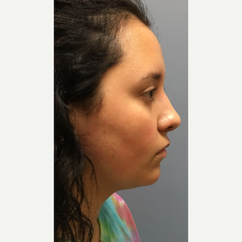 17 or under year old woman treated with Rhinoplasty after 3697925