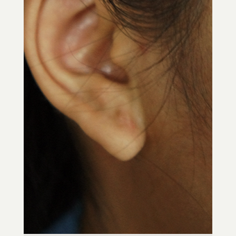 18-24 year old woman treated with Ear Lobe Surgery after 3244959
