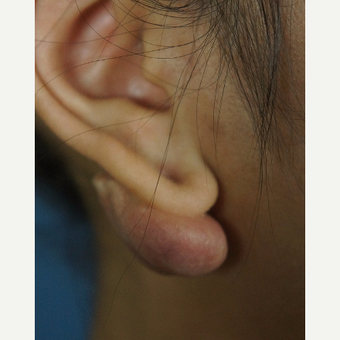 18-24 year old woman treated with Ear Lobe Surgery before 3244959
