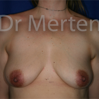 35-44 year old woman treated with Breast Augmentation before 3552644