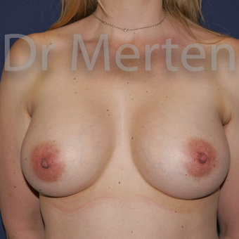 35-44 year old woman treated with Breast Augmentation after 3552644