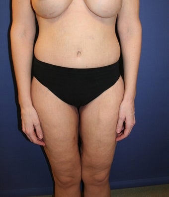 36 y/o female Underwent Body Contouring After Massive Weight Loss