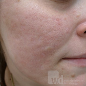 Filling up acne scars after 1442214