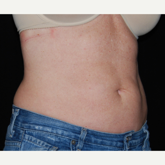 45-54 Year Old Woman Treated with SculpSure after 3099384