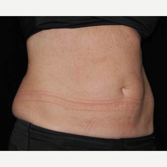 45-54 Year Old Woman Treated with SculpSure before 3099384