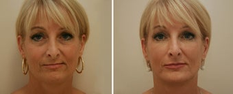 Injectable fillers & Botox Injections before 1291767
