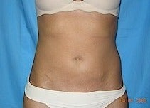 25 year old woman treated with Liposuction of abdomen and waist after 1581405