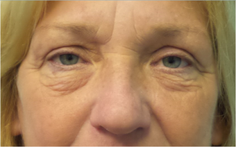 Lower blepharoplasty for eye bags before 3634057