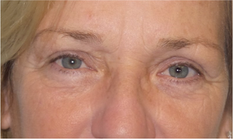 Lower blepharoplasty for eye bags after 3634057