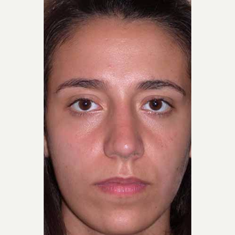 35-44 year old woman treated with Rhinoplasty after 3521244