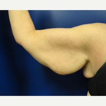 45-54 year old woman treated with Arm Lift before 3265914