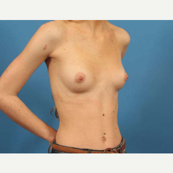 18-24 year old woman treated with Breast Implants with Shaped Implants (Gummy Bear) before 3787209