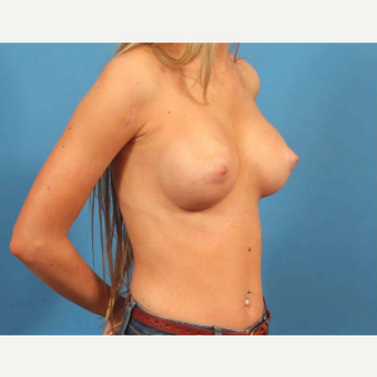 18-24 year old woman treated with Breast Implants with Shaped Implants (Gummy Bear) after 3787209