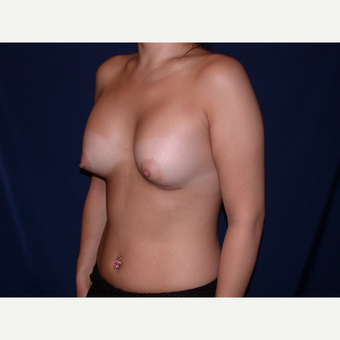 25-34 year old woman treated with Breast Augmentation after 3487376