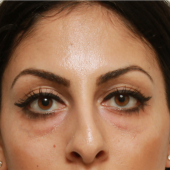 25-34 year old woman treated with Eye Bags Treatment before 3566697