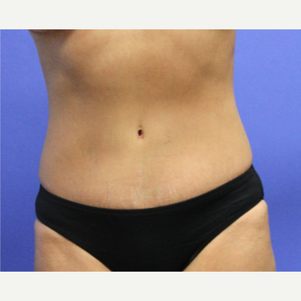 35-44 year old woman treated with Tummy Tuck after 3501504