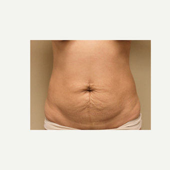 35-44 year old woman treated with Tummy Tuck before 3501504