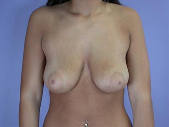Breast Lift with Implants before 1755523