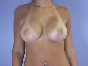 Breast Lift with Implants after 1755523