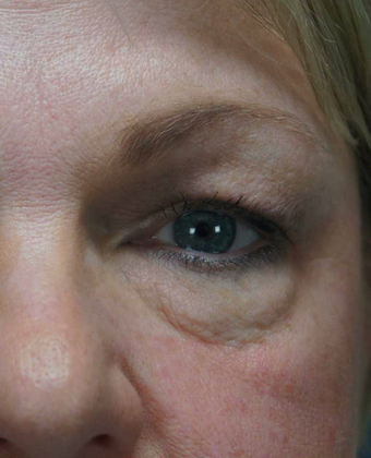 55-64 year old woman treated with Eye Bags Treatment before 1797401